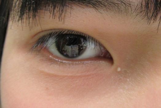 白い ぶつぶつ 目 の 周り