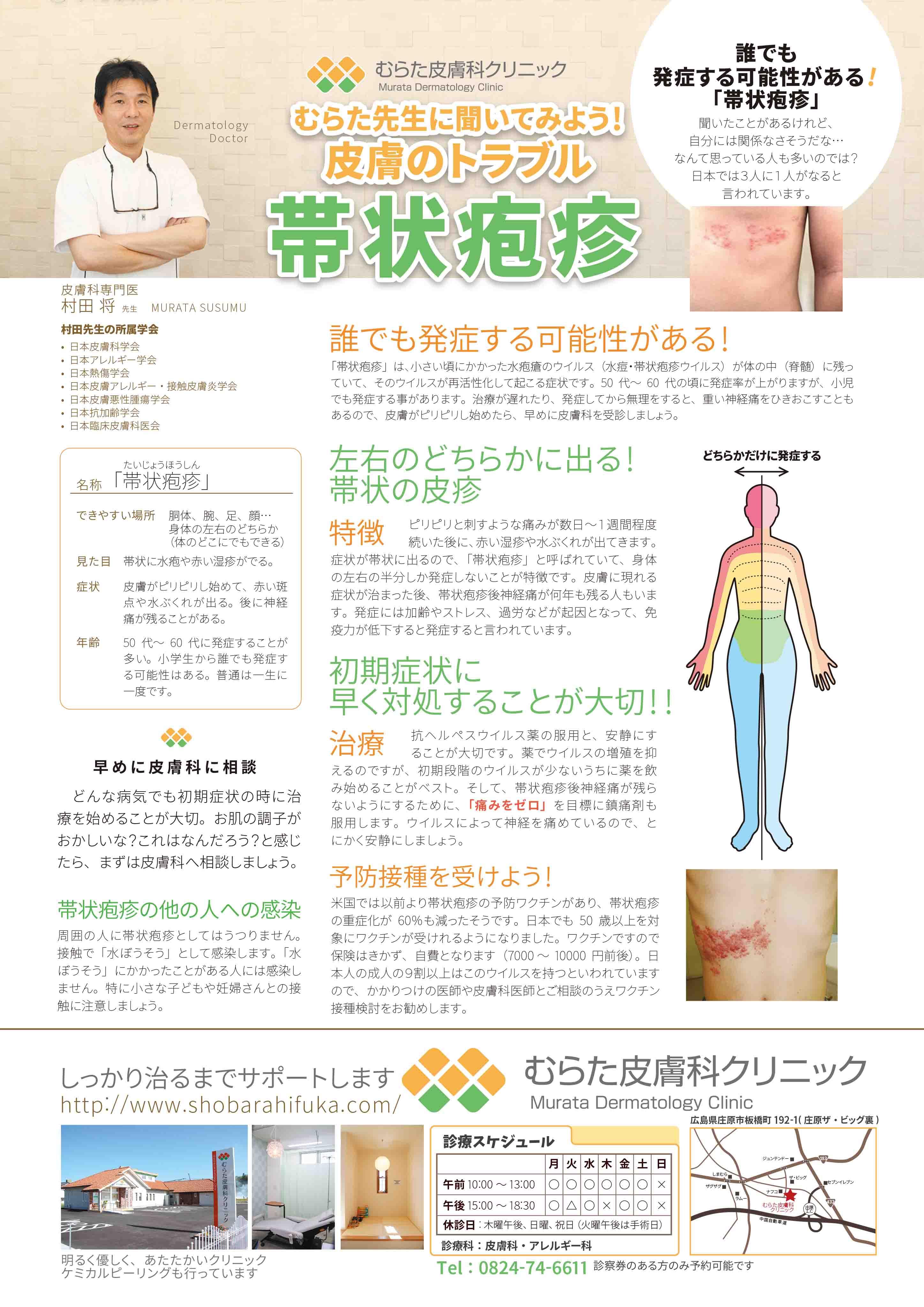 初期 帯状疱疹